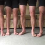 Sun burnt legs!